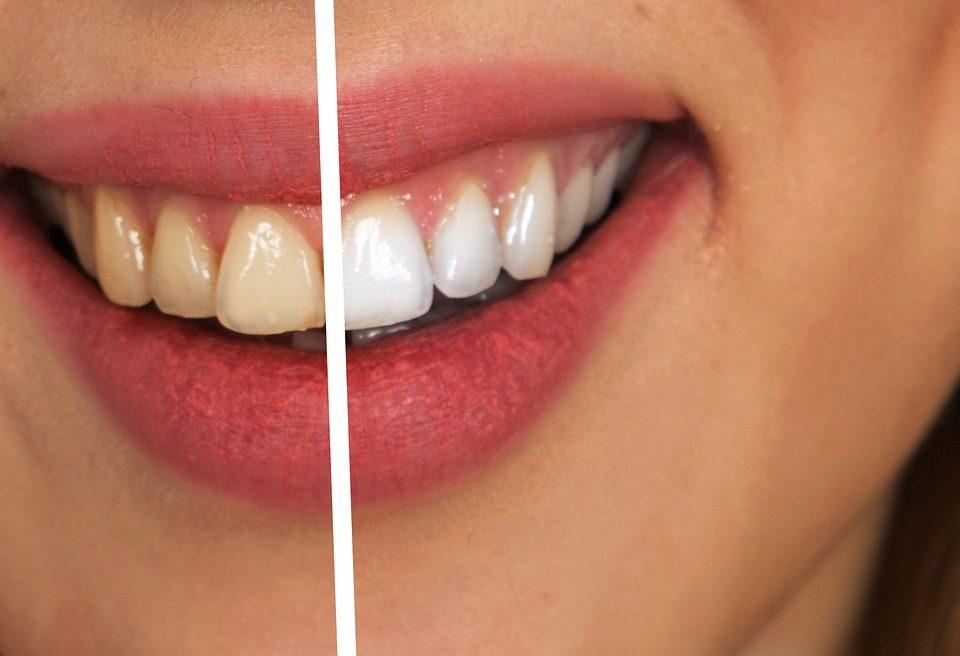 Arquivo Para Clareamento Dental Dentista Em Fortaleza Dr Andre